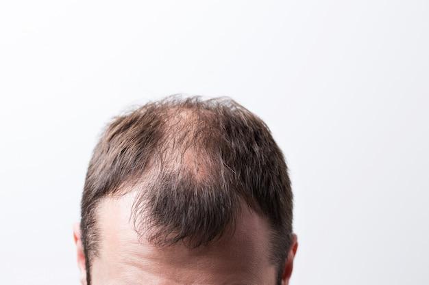 Close-up balding head of a young man Premium Photo