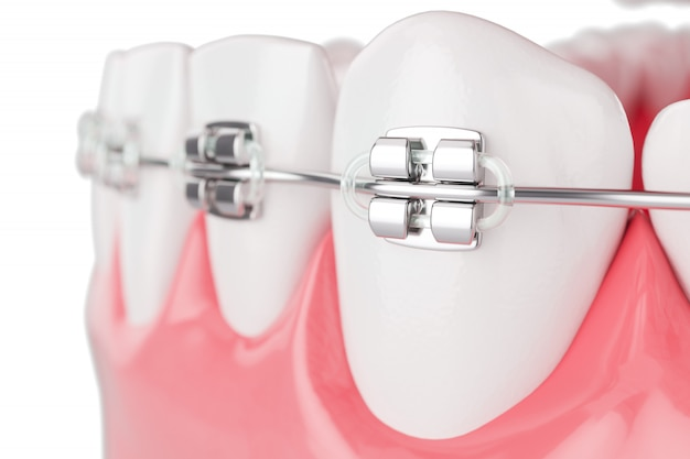 Close up beauty health teeth with brace. selective focus. 3d render. Premium Photo