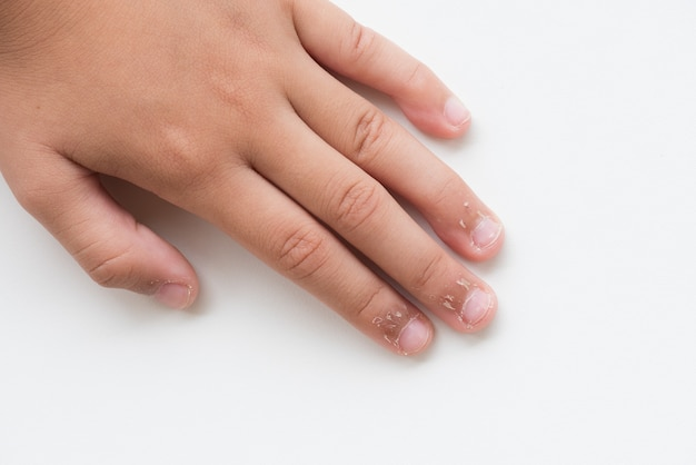 Close up child's fingers with dry skin, eczema dermatitis Premium Photo
