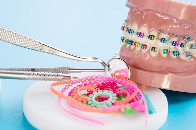 Крупным планом инструменты стоматолога и ортодонтическая модель - демонстрационная модель зубов различных ортодонтических скоб или скоб Premium Фотографии