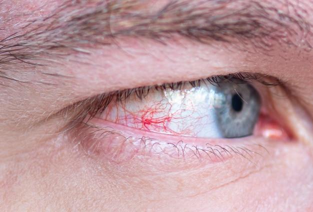 Close-up eye with red bloodshot capillary and veins Premium Photo