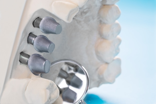 Close up implan model tooth support fix bridge implan and crown. Premium Photo