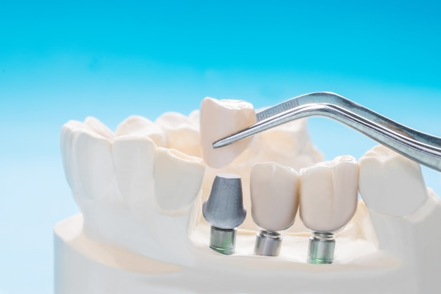 Close up implan tooth support fix bridge implan and crown. Premium Photo