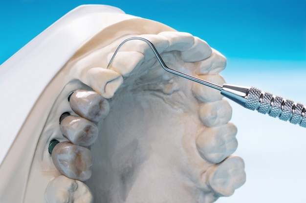 Close up implant model tooth support fix bridge implant and crown. Premium Photo