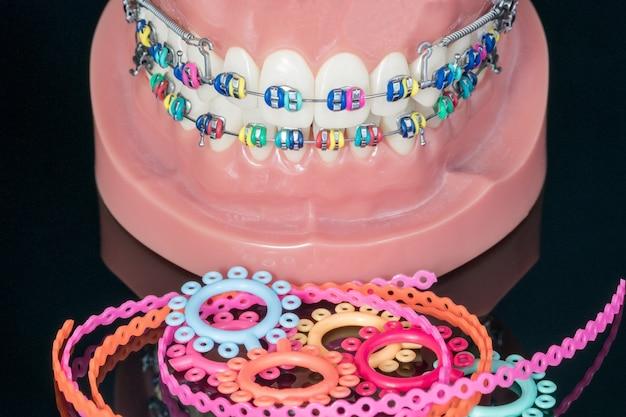 Close up  orthodontic model  - demonstration teeth model of varities of orthodontic bracket or brace Premium Photo