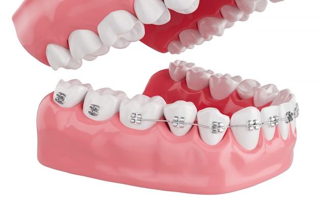 Close up process health teeth with brace. selective focus. 3d render. Premium Photo