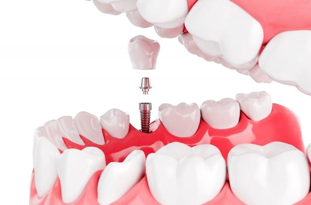 Close up process implants teeth health care. selective focus. 3d render. Premium Photo