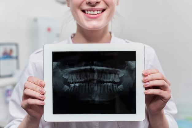 Raggi x dei denti della tenuta della donna del primo piano Foto Gratuite