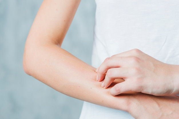 Close-up of a woman's hand scratching her hand Free Photo