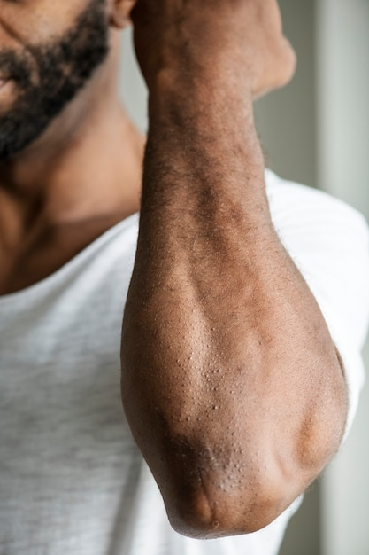 Closeup of black person's arm Free Photo