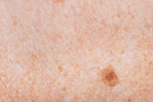 Closeup of freckled skin Free Photo
