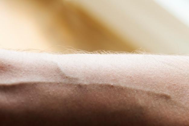Closeup of a human arm and vein Free Photo