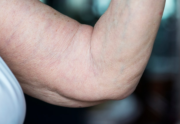 Closeup of loose elderly arm Free Photo