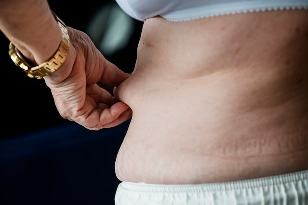 Closeup of obese elderly woman Free Photo