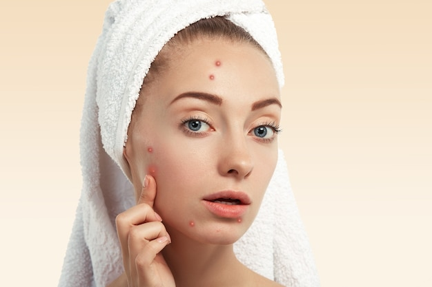 Closeup of young woman with towel on head and pimples on face Free Photo