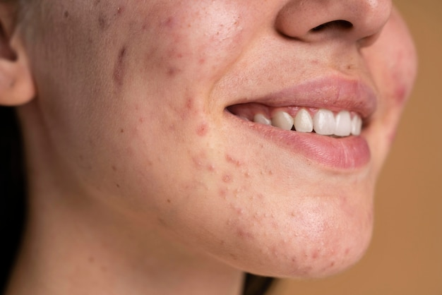Confident young woman with acne close-up Free Photo