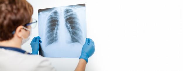 女性医師は、covid-19コロナウイルス、肺炎に感染した患者の肺のx線を検査します。x線の光。フルオログラフィー。病院の肺をチェックします。人間の肺の実際のx線 Premium写真