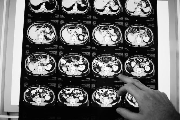 脳ctスキャンx線フィルム 無料写真