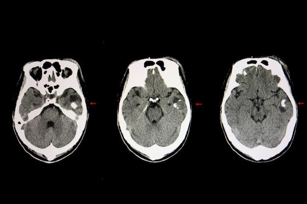 Cystic brain tumor Premium Photo