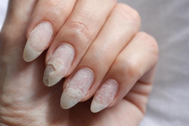 Nail peeling | makeup artist in Delhi