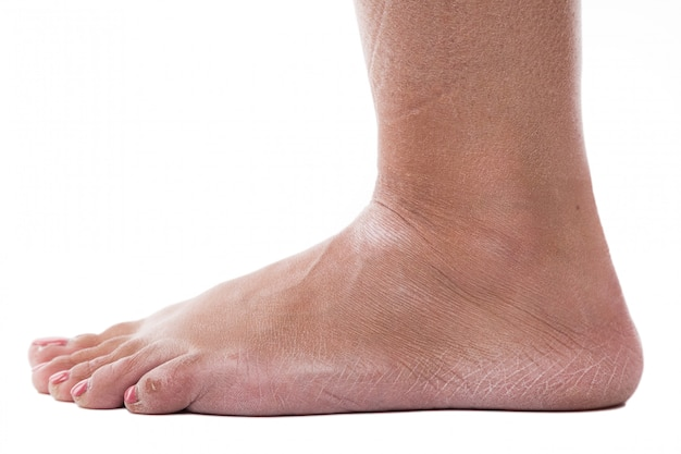 Dehydrated skin on the heels of female feet Premium Photo