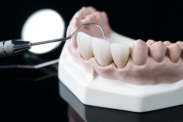 Demonstration teeth model of varieties of prosthodontic bracket or brace Premium Photo