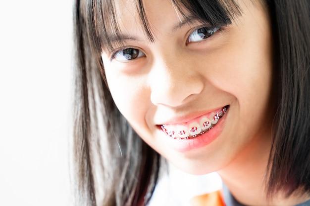 Дентал брэйс девушка улыбается и смотрит в камеру, она чувствует себя счастливой и имеет хорошие отношения с стоматологом Premium Фотографии