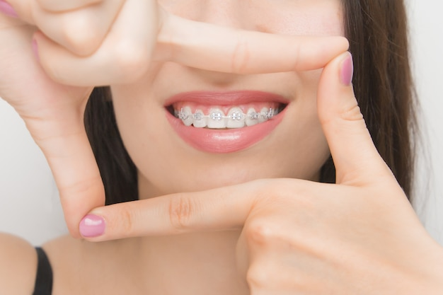 Dental braces in happy woman's mouths through the frame. brackets on the teeth after whitening. self-ligating brackets with metal ties and gray elastics or rubber bands for perfect smile Premium Photo