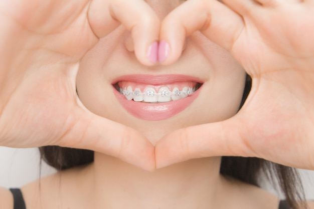 Dental braces in happy woman's mouths through the heart. brackets on the teeth after whitening. self-ligating brackets with metal ties and gray elastics or rubber bands for perfect smile Premium Photo
