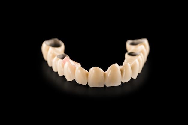 Dental ceramic bridge on isolated black Premium Photo
