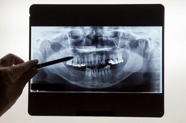 Dental x ray film for dental care concept Premium Photo