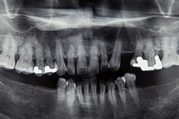 Dental x ray film for dental care concept Premium Photo