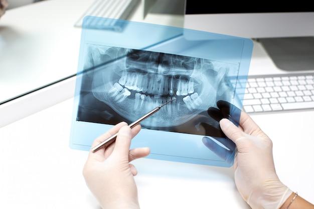 Стоматолог анализирует рентгеновское фото Бесплатные Фотографии