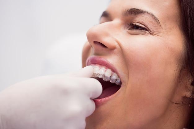 Dentista che assiste la paziente a indossare le parentesi graffe Foto Gratuite