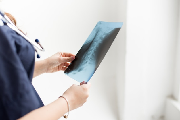 Doctor examining chest x-ray film of patient at hospital on white, copy space Premium Photo