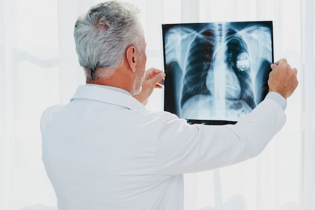 Doctor looking at chest x-ray Premium Photo