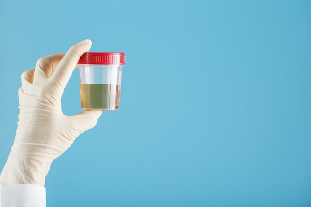 医者の手袋をはめた手が尿検査で透明な容器を保持しています Premium写真