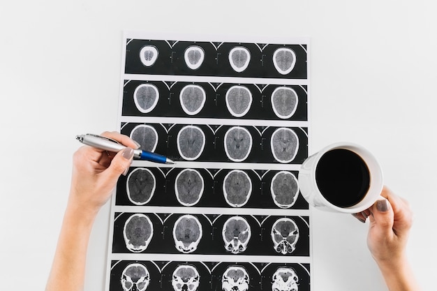 Doctor's hand with cup of tea and pen over mri scan of human brain Premium Photo
