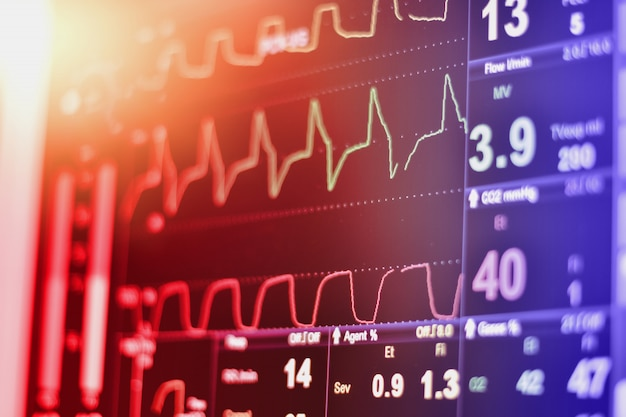 Ekg monitor in intra aortic balloon pump machine in icu on blur background, brain waves in electroencephalogram, heart rate wave Premium Photo