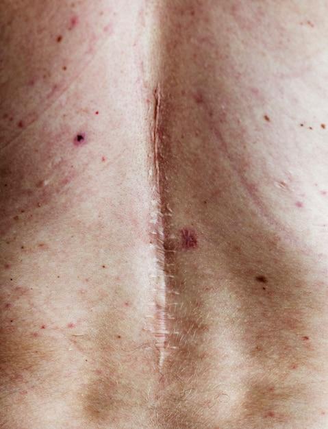 Elderly person back surgery scar Free Photo