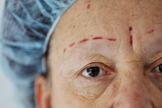 Elderly woman getting botox injection procedure Premium Photo