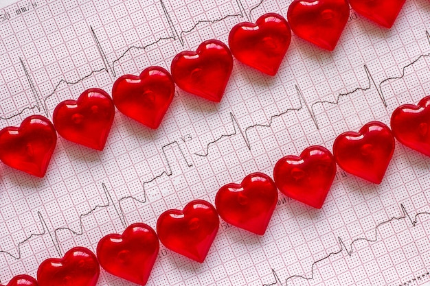 Electrocardiogram and red hearts. Premium Photo