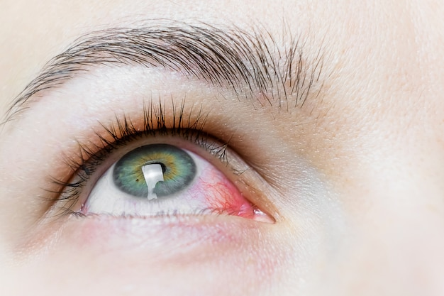 深刻な血走った赤目のクローズアップ。ウイルス性眼eph炎、結膜炎、アデノウイルス。眼の炎症または感染。 Premium写真