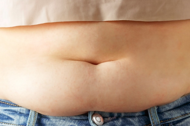 Excess fat on abdomen close up, the concept of weight loss Premium Photo