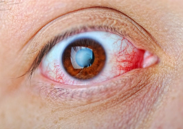 Eye, macro, blood Premium Photo