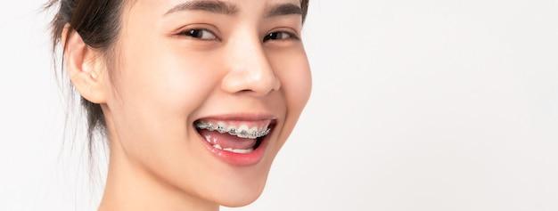 Лицо молодой улыбающейся азиатской женщины с скобами на зубах, ортодонтическое лечение. Premium Фотографии