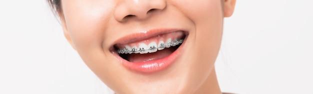 Лицо молодой улыбающейся азиатской женщины с брекетами на зубах Premium Фотографии