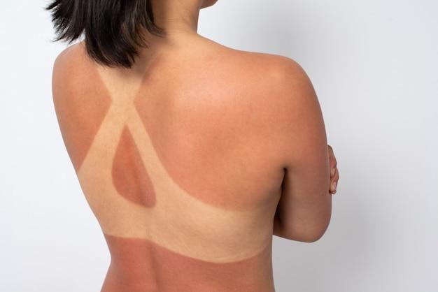 日焼けと水着の痕跡を持つ女性の背中 Premium写真