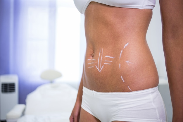 Female body with the drawing arrows for abdomen for liposuction and cellulite removal Free Photo
