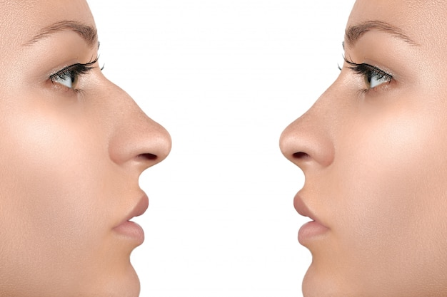 Female face before and after cosmetic nose surgery Premium Photo